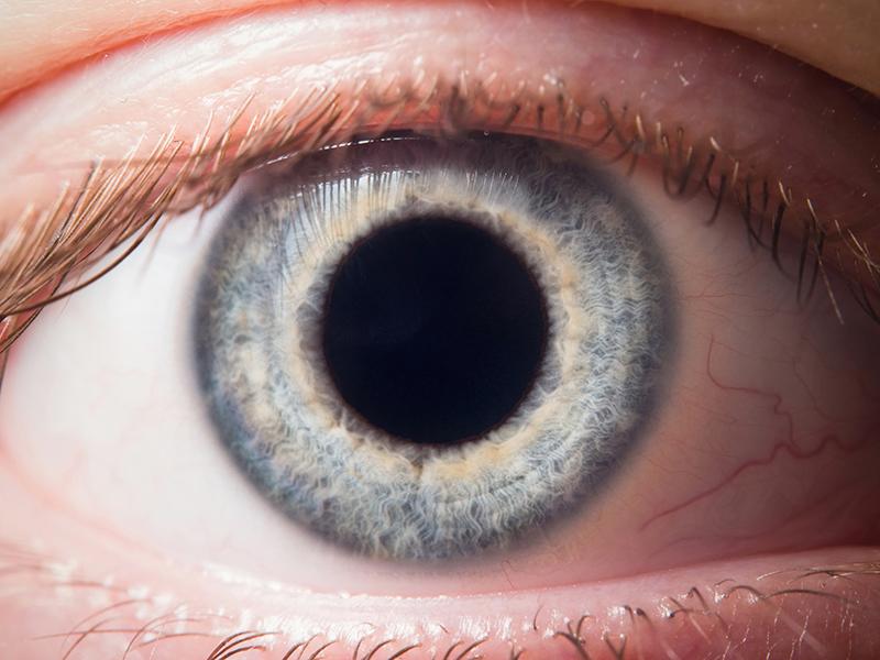 Красные глаза от марихуаны подкормка рассады конопли